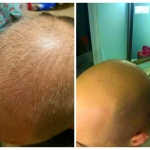 bald-before-after
